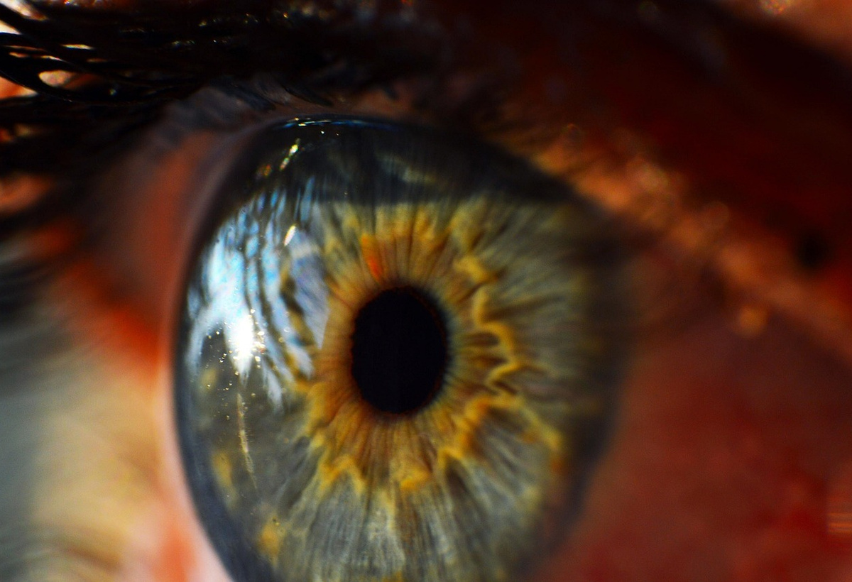 A New Chemical Cross-Linker for the Treatment of Keratoconus