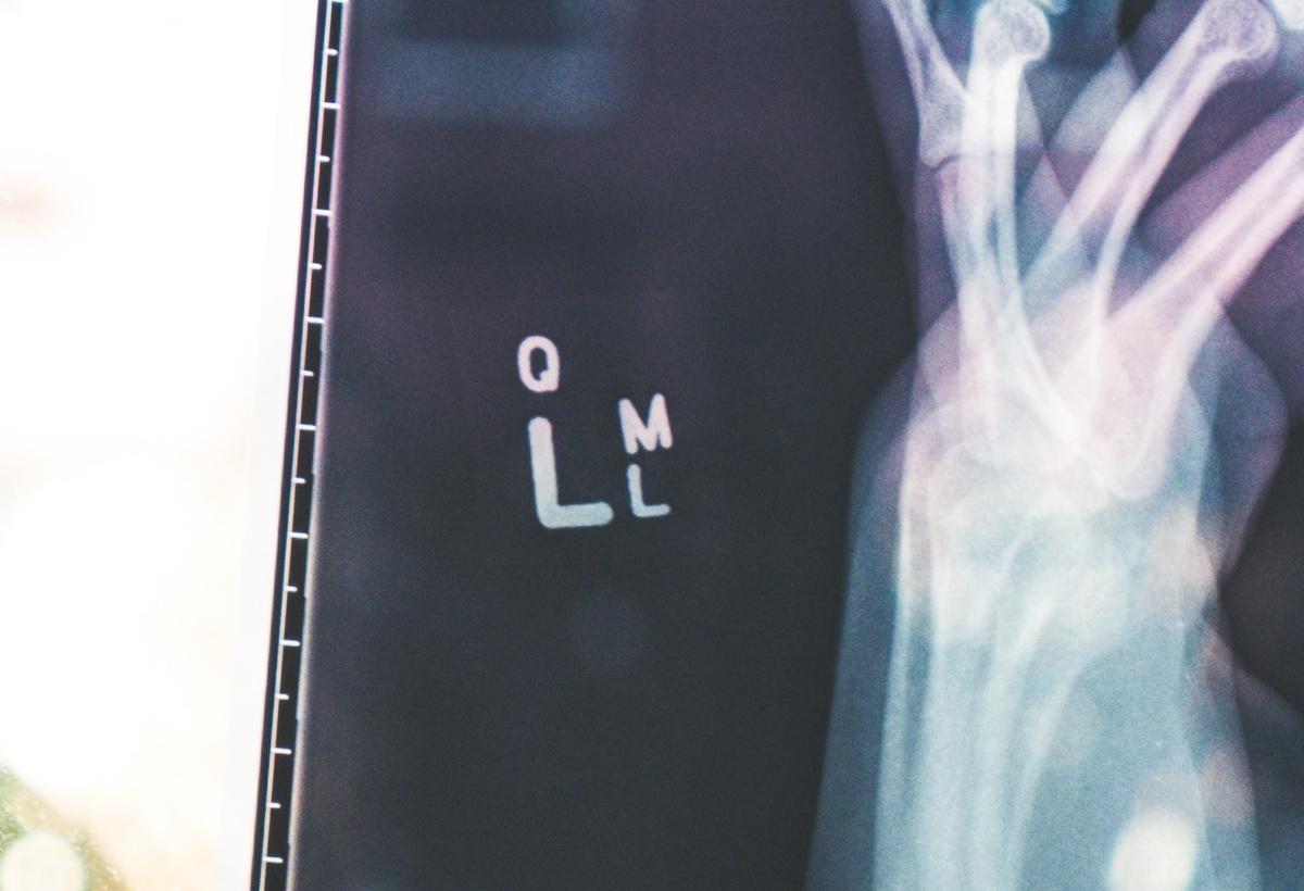 CombiMark: Reducing Preventable Harm to Patients