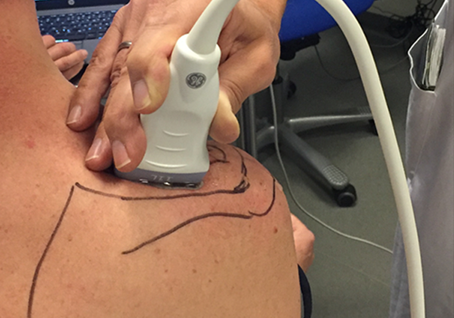 Direct Isometric Muscle Strain Analyses using Speckle Tracking Ultrasound Technology