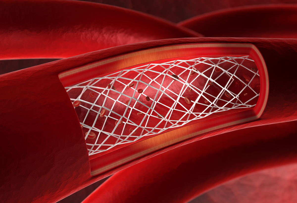 Stent Graft and Device for Placing such a Stent Graft in the Ascending Aorta
