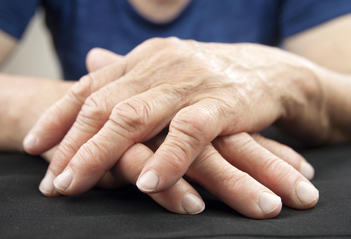 Novel Treatment for Rheumatoid Arthritis