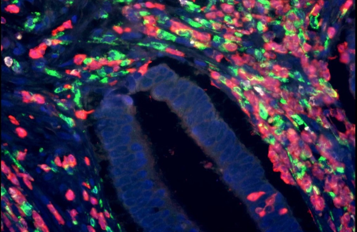 Optimised Screening for Pancreatic Cancer