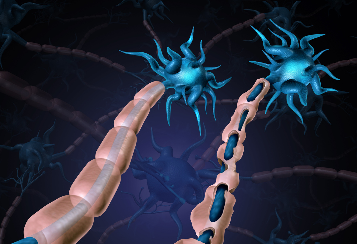 Protection Against Chemotherapy-Induced Neurotoxicity