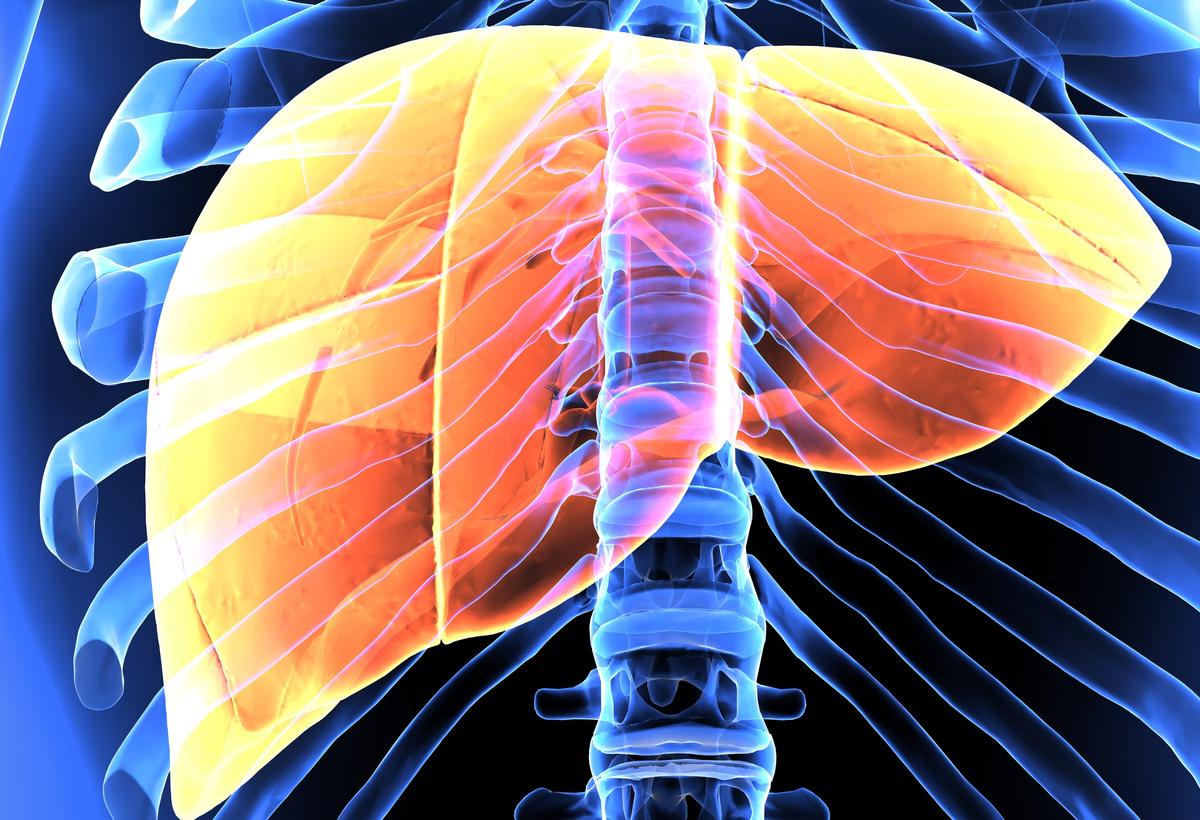 Plasma TREM2 - A Novel Non-Invasive NASH Biomarker