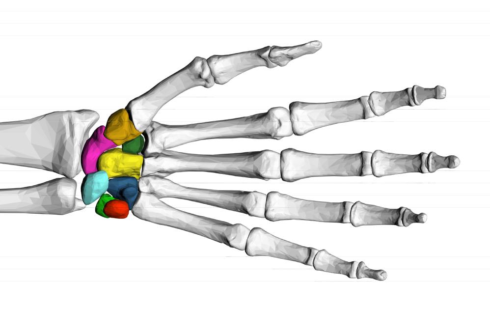 Twin Screw Stabilizing Loads in Bone Fragments
