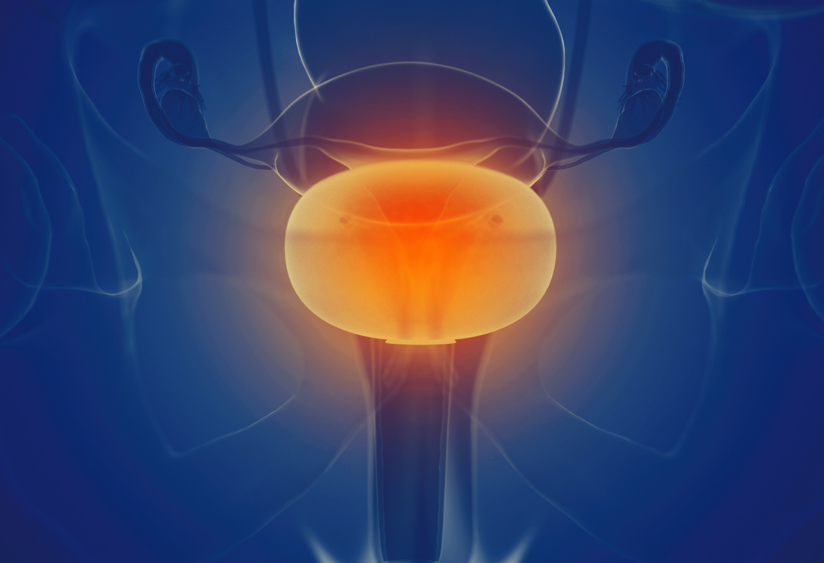 EpiMend: The Next Generation of Interstitial Cystitis Treatments