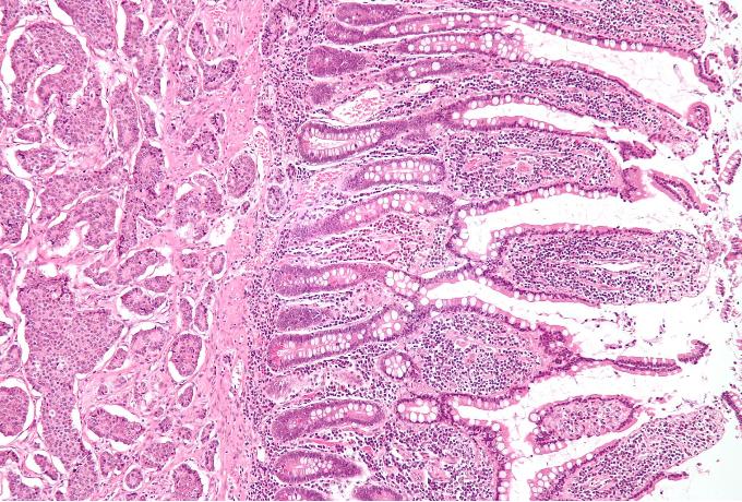 Tumour ECM-targeted Tumour Necrosis Factor (TNF) alpha