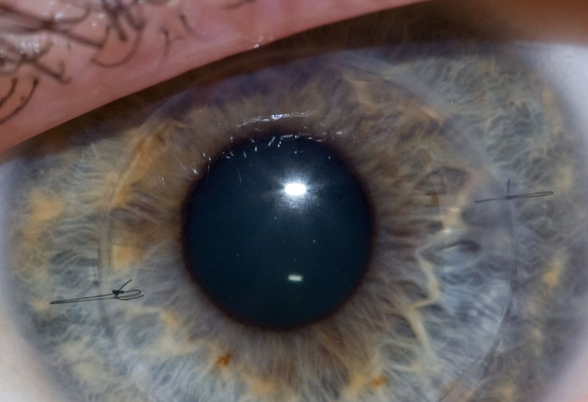 Self-Deliverable siRNA to Prevent Corneal Scarring