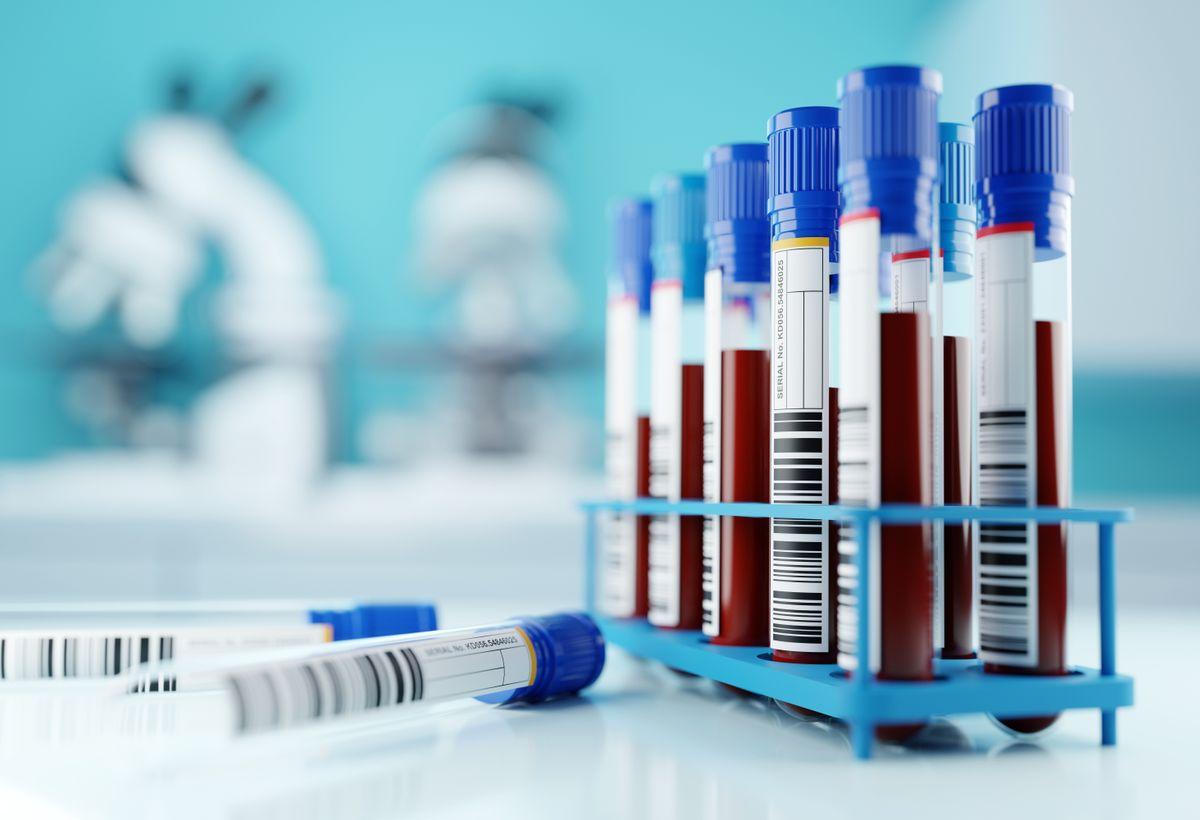 Blood-Based Biomarker Panel for Diagnosis of Parkinson's Disease