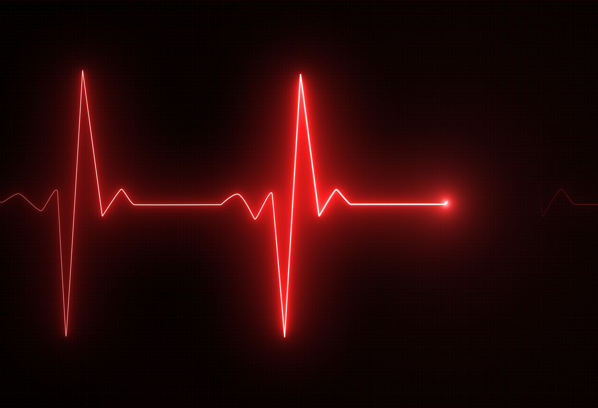 Generating ECG/EKG Signals from PPG Sensor Data
