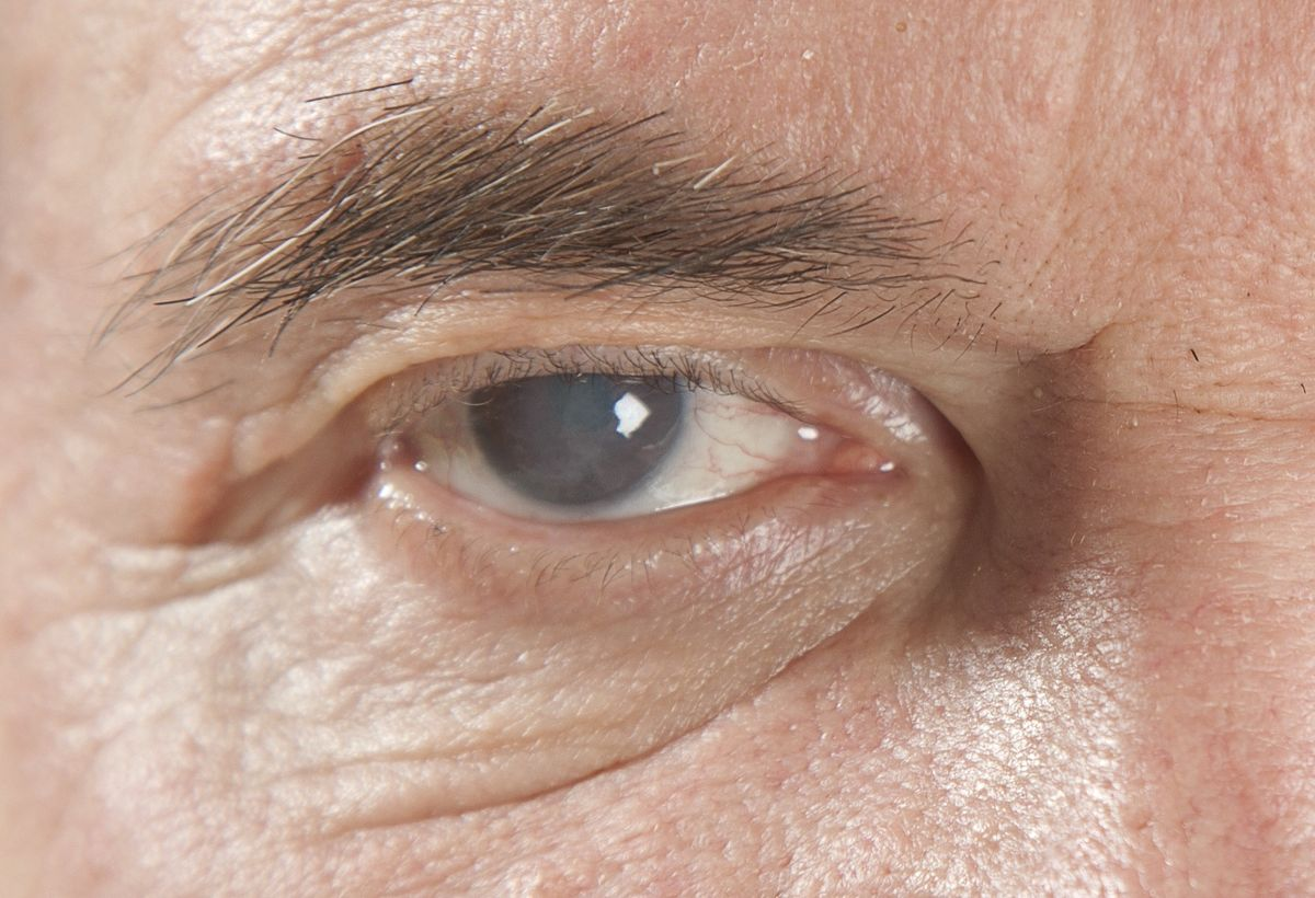 Eyecatcher: Glaucoma Home-Monitoring