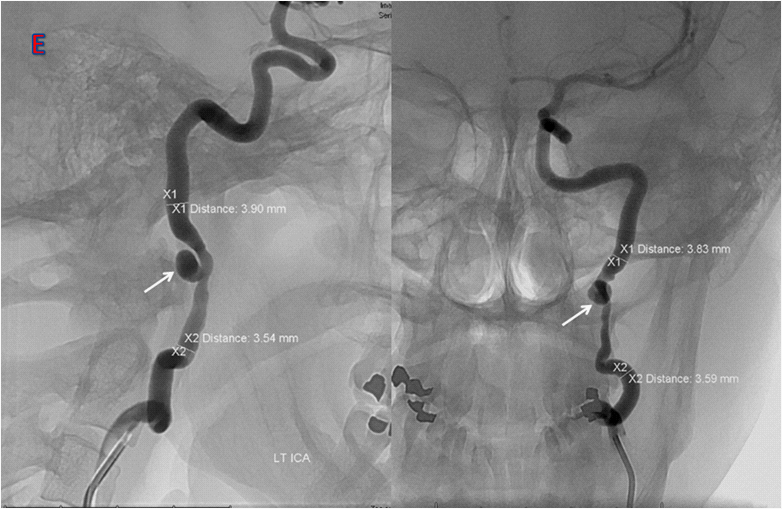 Novel Percutaneous Carotid Access System (PerCAS) enables Shorter Interventional Devices for Neurovascular Access
