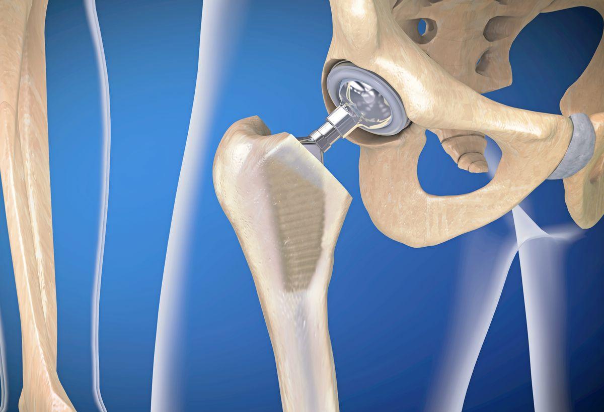 Orthopedic Implant Coating
