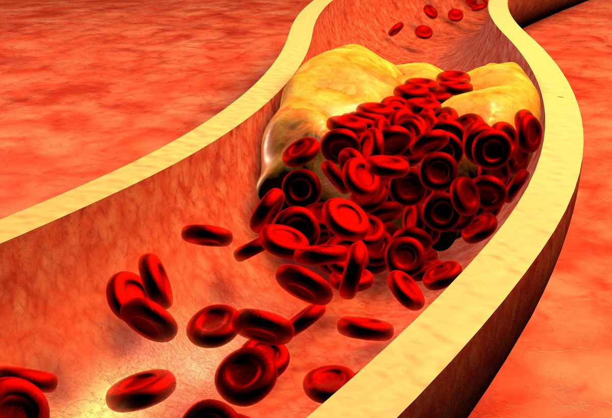 Impedance Imaging for the Detection of Arteriosclerosis