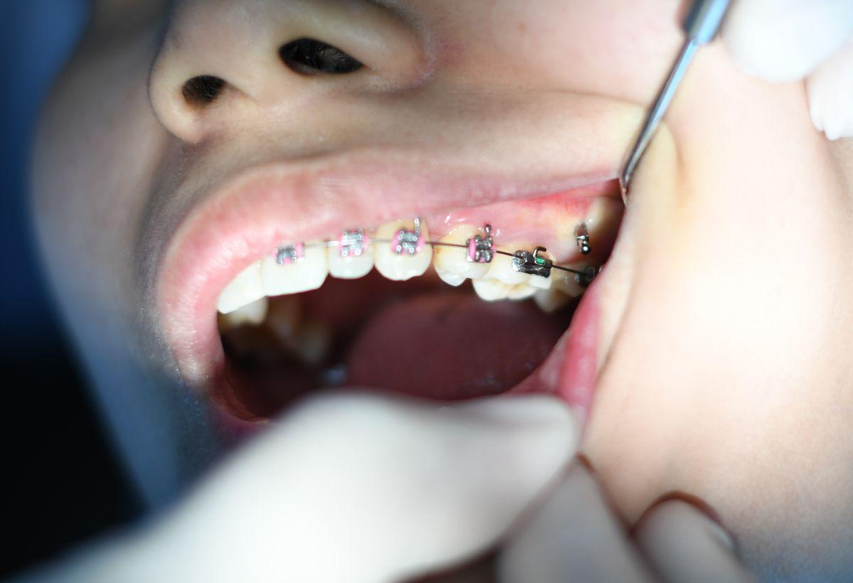 Accelerating Orthodontic Treatment Using Mechanical Vibrations Through PVDF Actuators