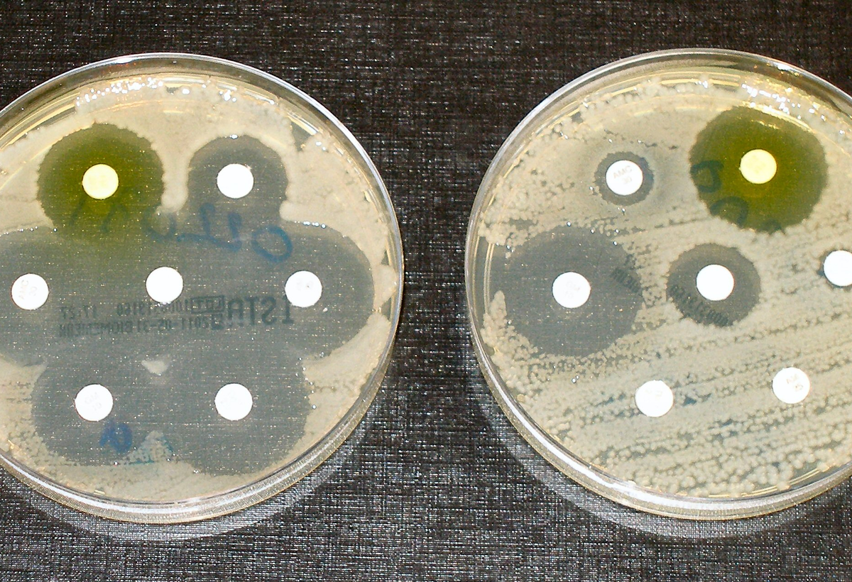 Non-antibiotic Antimicrobial Technologies – Application in Human Mouthwash