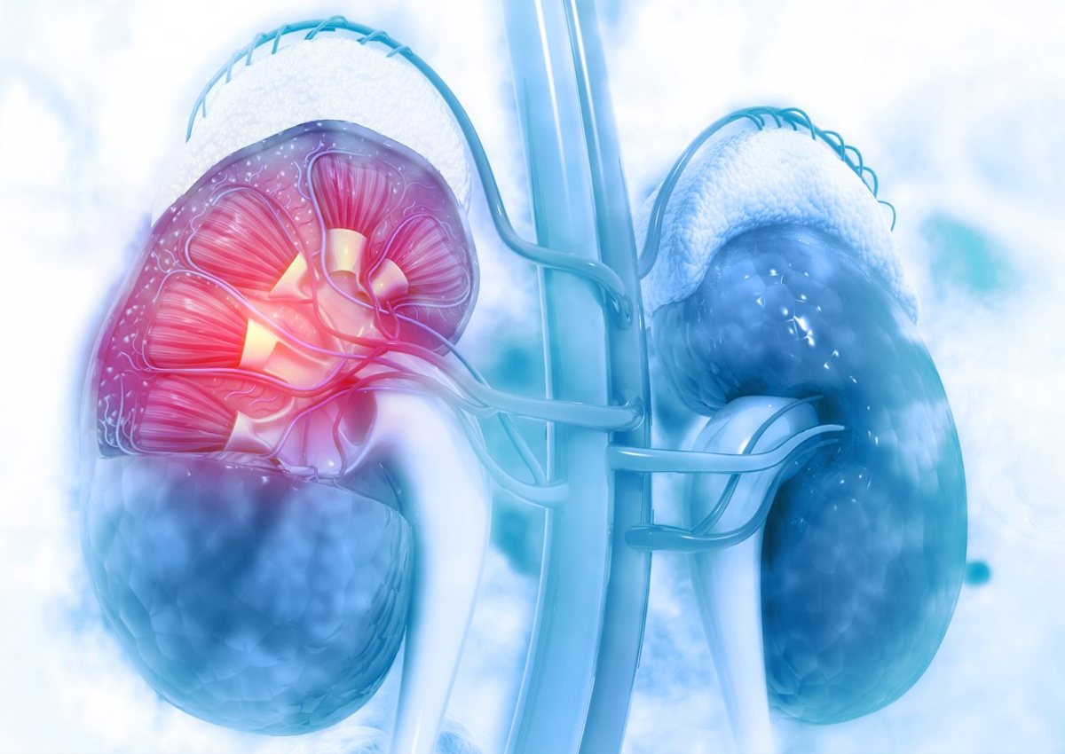 Breakthrough Therapies & Innovative Models for Kidney Diseases