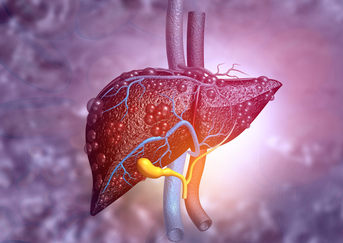 Seeking Drug Candidates to Improve the Symptoms of NASH and Inhibit the Progression of Liver Fibrosis