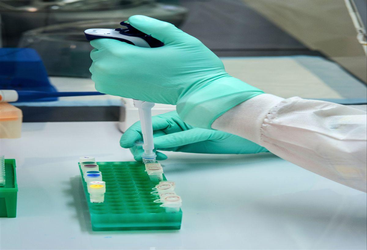 COVID-19 Luminex Assay: High-throughput assay to Detect Antibodies Against the SARS-CoV2 Virus
