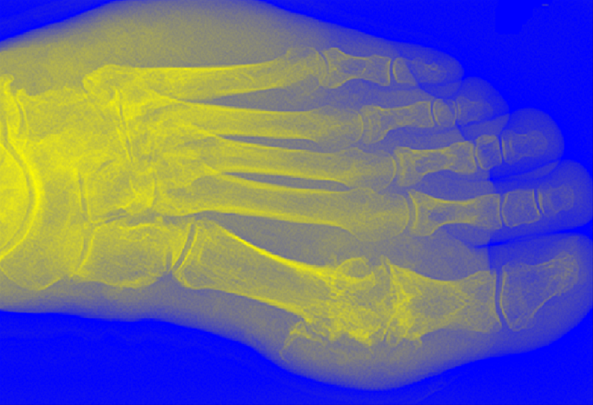 Novel Treatment for Gout and Hyperuricemia