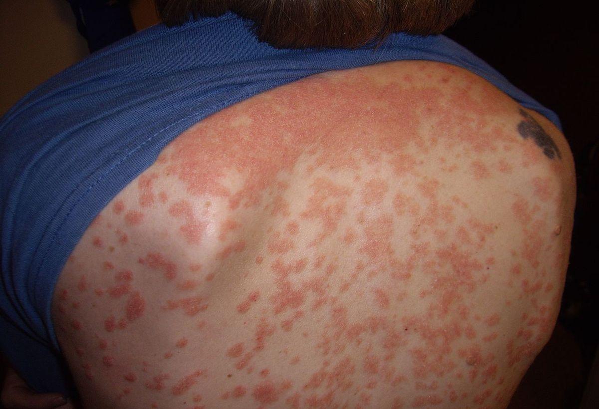 Novel Selective Cyp26 Antagonists for Dermatological Diseases